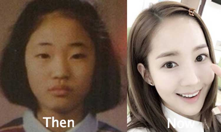 Park Min Young Eyelid Surgical