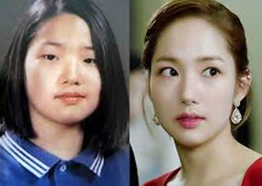 Park Min Young Nose Job