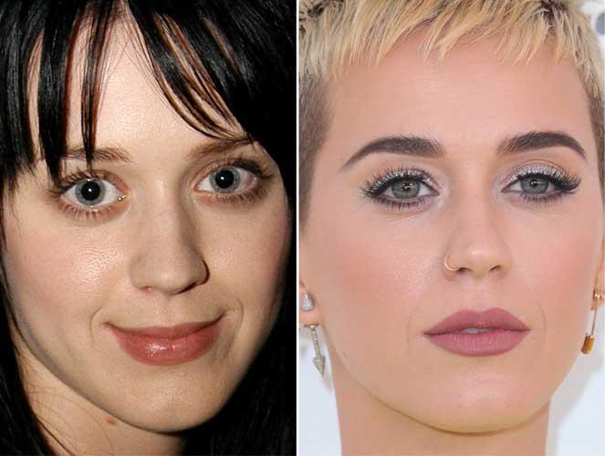 Katy Perry plastic surgery
