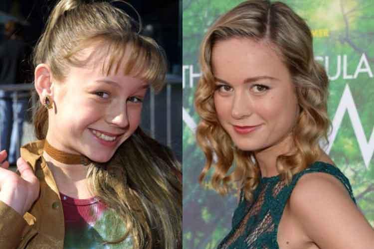 Brie Larson Plastic Surgery
