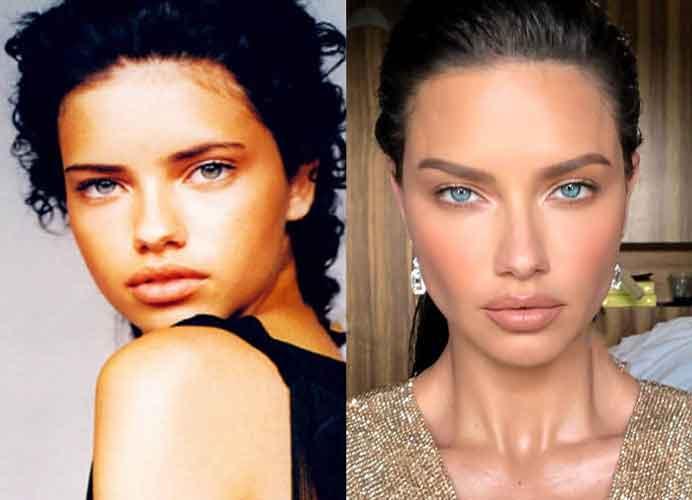 Adriana Lima Plastic Surgery